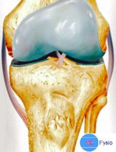 knie gewricht artrose